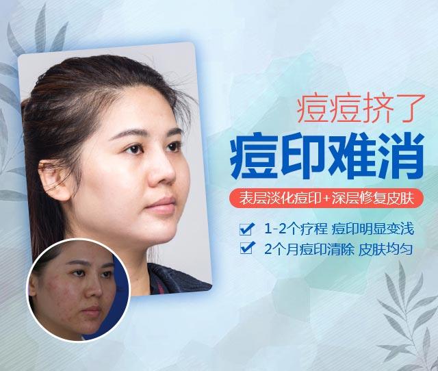 上海祛痘祛痘印美莱效果案例