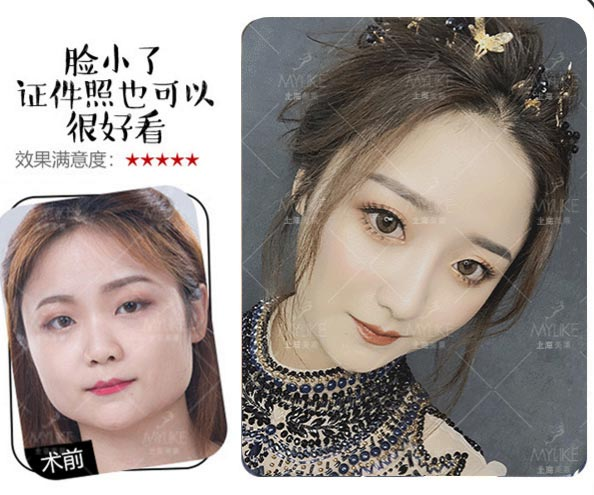 上海美莱注射瘦脸针效果