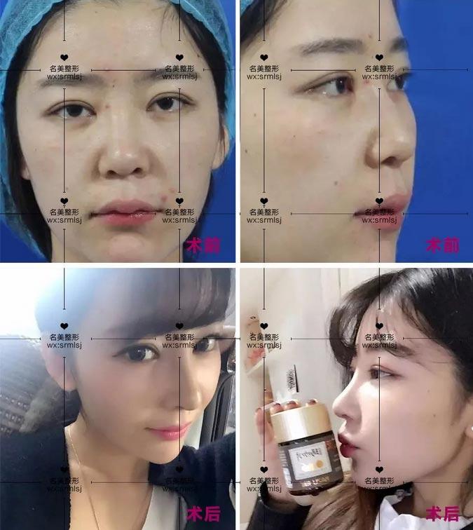 上海美莱李保锴隆鼻案例