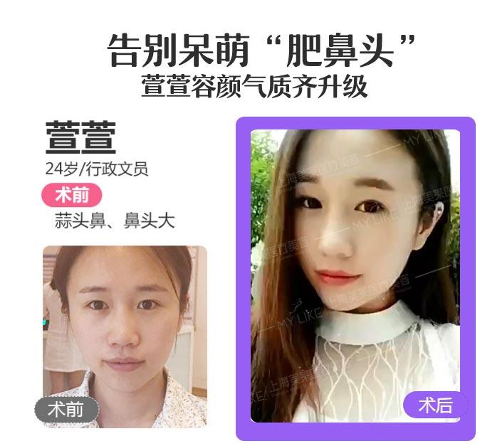 上海美莱缩小鼻翼案例
