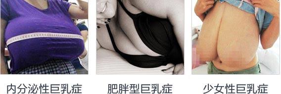 上海美莱乳房缩小术效果怎么样