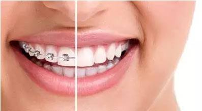 上海牙齿矫正哪里比较好