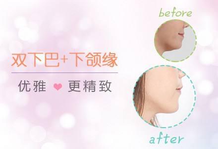 吸脂和溶脂针哪个瘦双下巴更有效