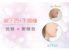 美莱吸脂和溶脂针哪个瘦双下巴更有效