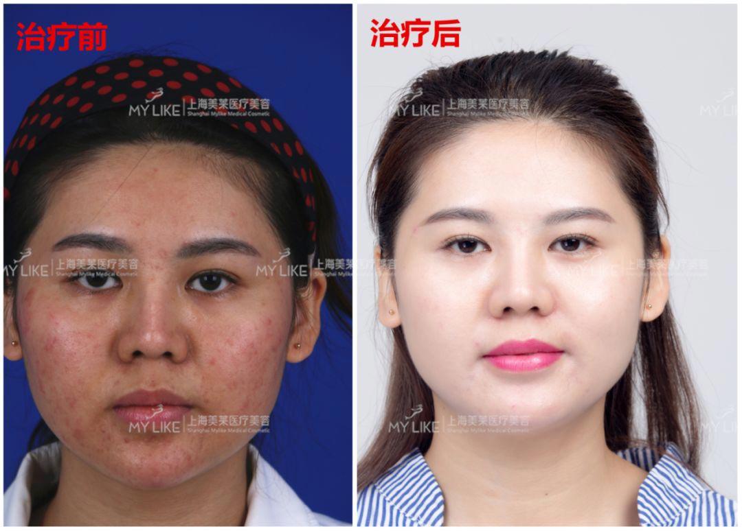 上海美莱微针美肤案例