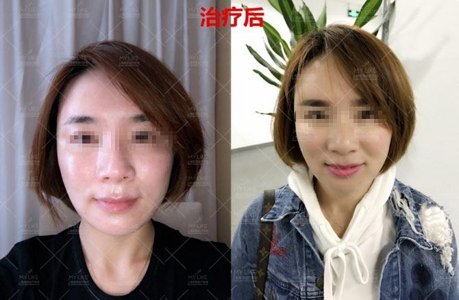 上海美莱周年庆|水光美白嫩肤只要520