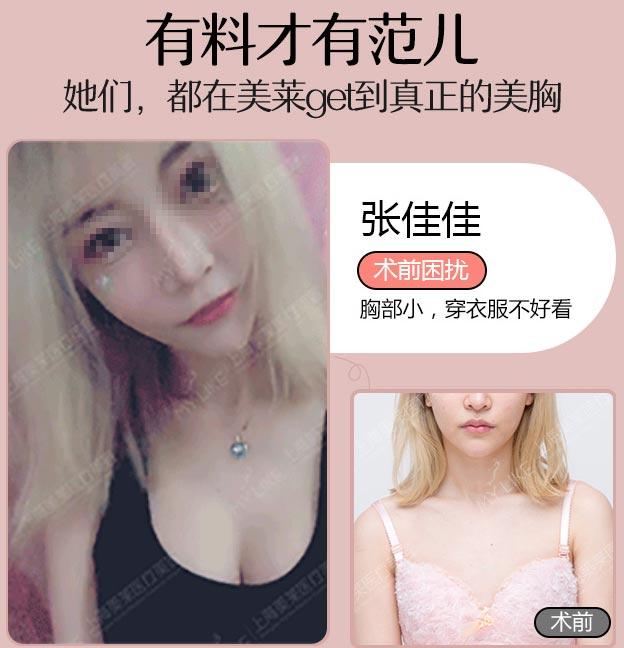 上海美莱汪灏隆胸案例