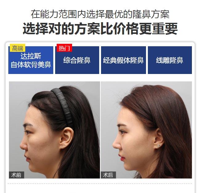 上海美莱自体软骨隆鼻案例