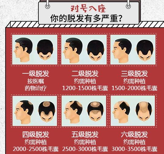 上海头发种植美莱值得信赖吗