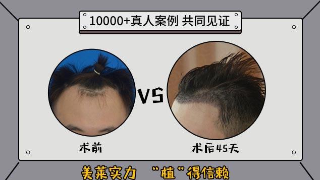 上海美莱毛发种植案例