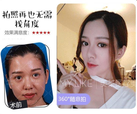 美莱注射瘦脸针案例