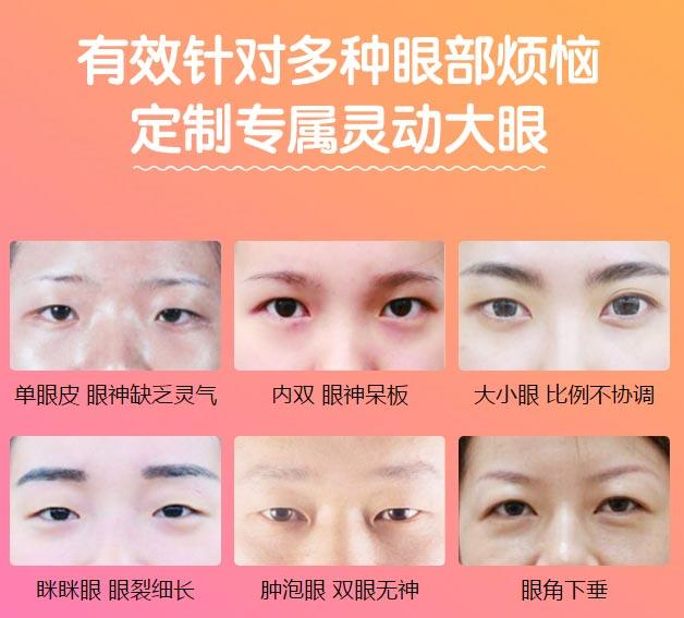 上海双眼皮医院美莱做的好不好