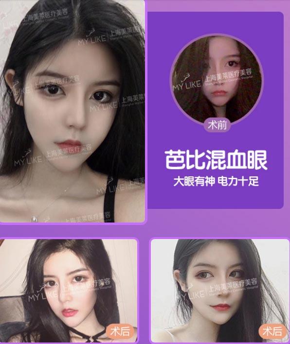 上海美莱双眼皮案例