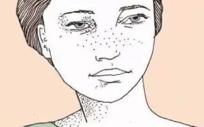 做完激光祛斑后脸上会不会结痂
