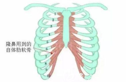 上海做肋骨隆鼻术多少钱