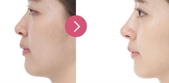 上海美莱做肋骨隆鼻术案例