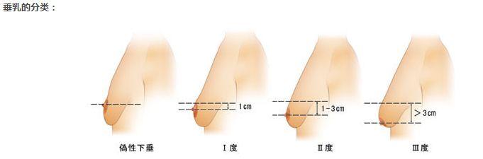 胸部下垂可以怎么提升美莱