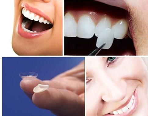 美莱医疗美容牙齿贴面修复能维持多久