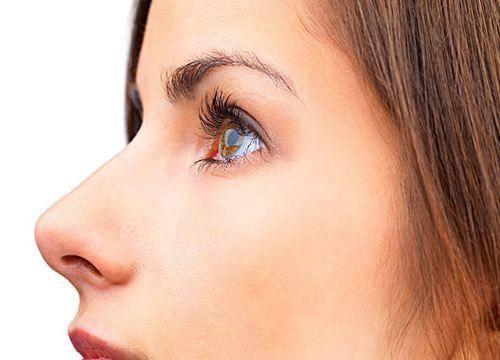 鼻子矫正手术后遗症有吗