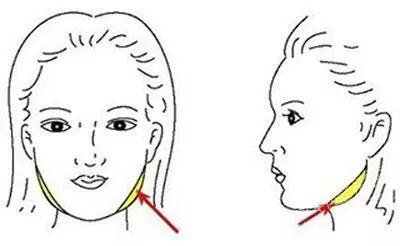 美莱|脸上胖是脂肪,打瘦脸or面部吸脂