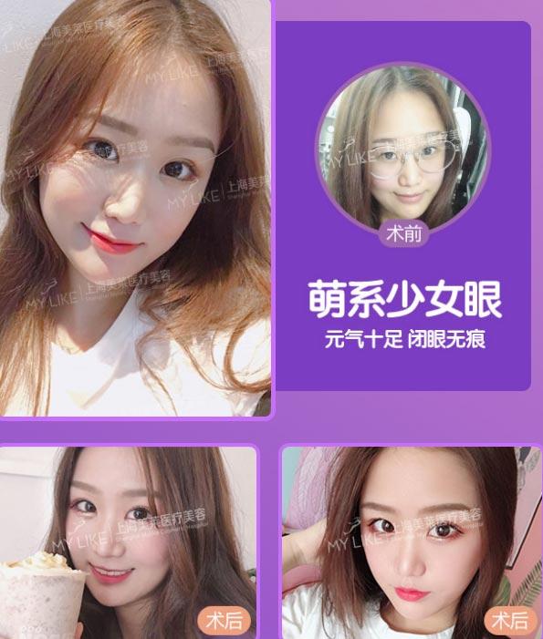 上海美莱做双眼皮前后对比照
