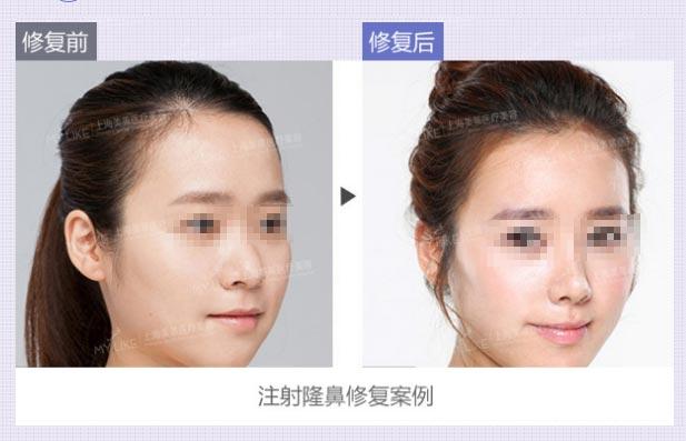 上海美莱隆鼻修复案例