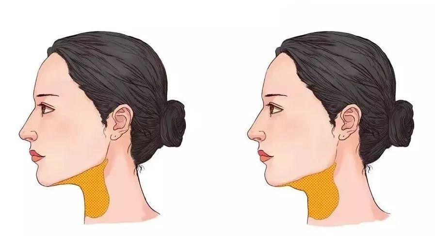 双下巴怎么减才会有效果