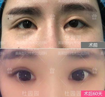 上海杜园园做眼睛案例