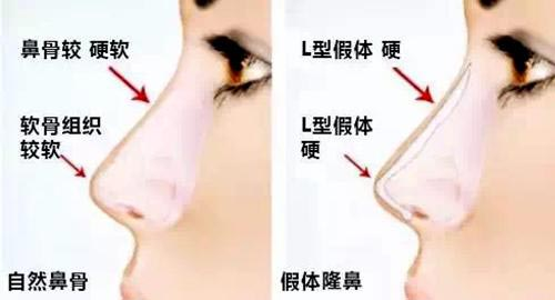 上海美莱自体软骨隆鼻效果