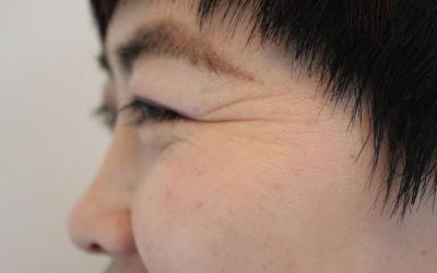 上海医院祛鱼尾纹需要多少钱