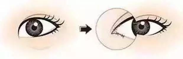 开眼角和不开眼角的区别有多大