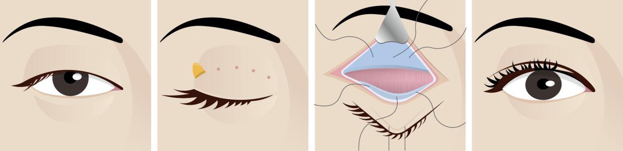 如何改善眼皮松弛下垂