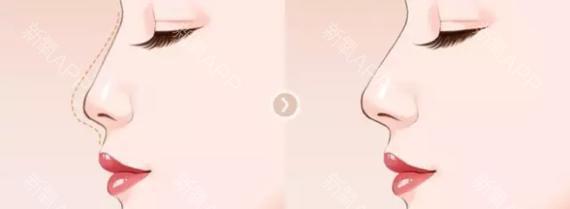上海做鼻翼整形术需要多少钱