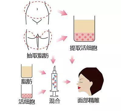 上海做自体脂肪能维持多久