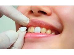 美莱牙贴面能同时解决多种牙齿问题吗
