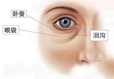 上海美莱泪沟填充好不好