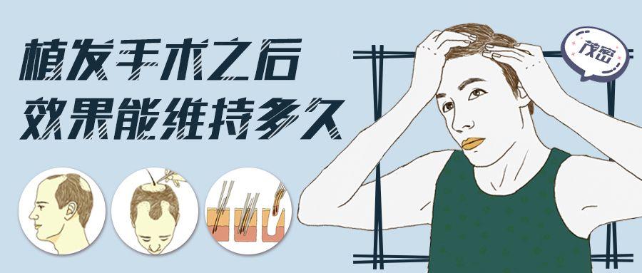 美莱如何治疗脱发