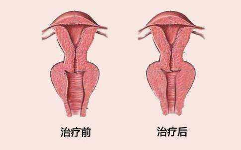 上海做阴道紧缩手术会有副作用吗