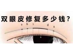 上海地区修复双眼皮多少