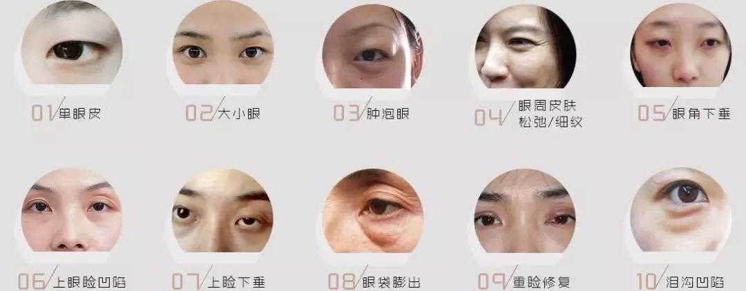 美莱做双眼皮上海的怎么样
