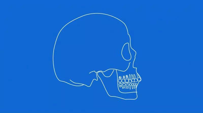 美莱|不是每个社会人都有牙齿矫正,带牙套的资格