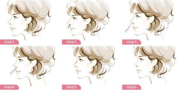上海哪种隆鼻方法安全可靠