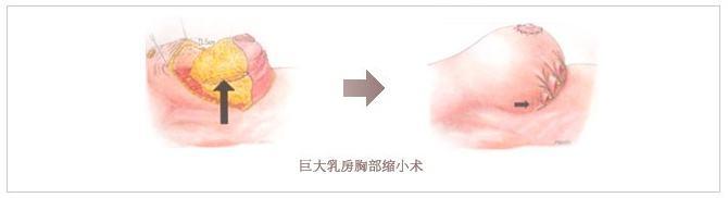 刚做完胸部缩小手术应该注意哪些