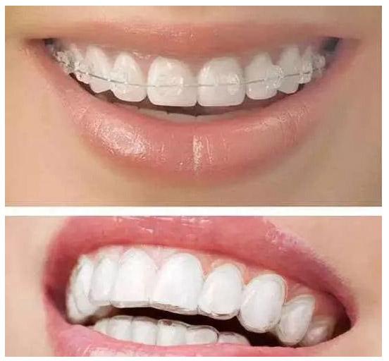 为什么很多人都选择隐适美做牙齿矫正