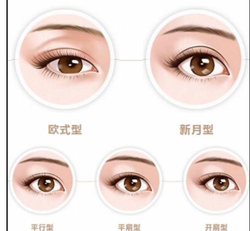 上海做扇形双眼皮效果怎么样
