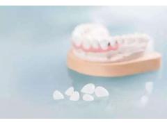 做超薄牙贴面前我们需要知道什么