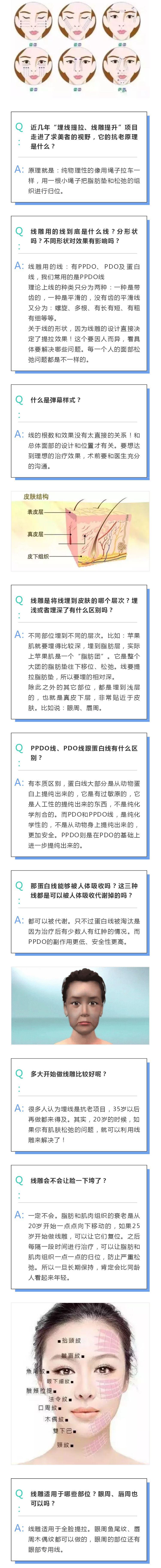 上海美莱|关于线雕18个问题最全讲解