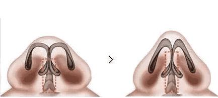 隆鼻这么多材料我们应该怎么选美莱