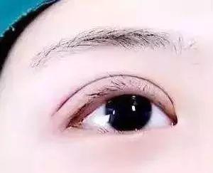 肿眼泡该做双眼皮还是吸脂