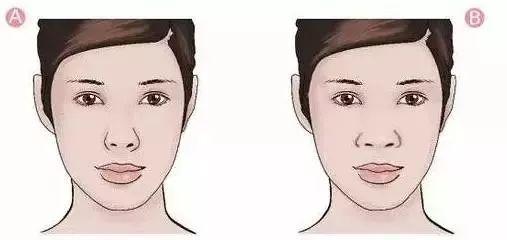 上海做隆鼻和鼻综合整形区别在哪里